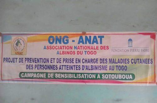 Article : Sotouboua/ L'ONG ANAT au secours des albinos du canton de Tchebebe