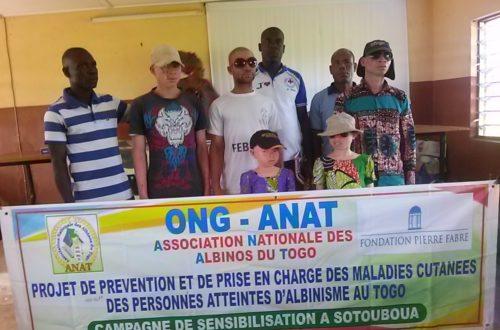 Article : Campagne de sensibilisation à Sotouboua: ANAT contre  l'albinisme au Togo