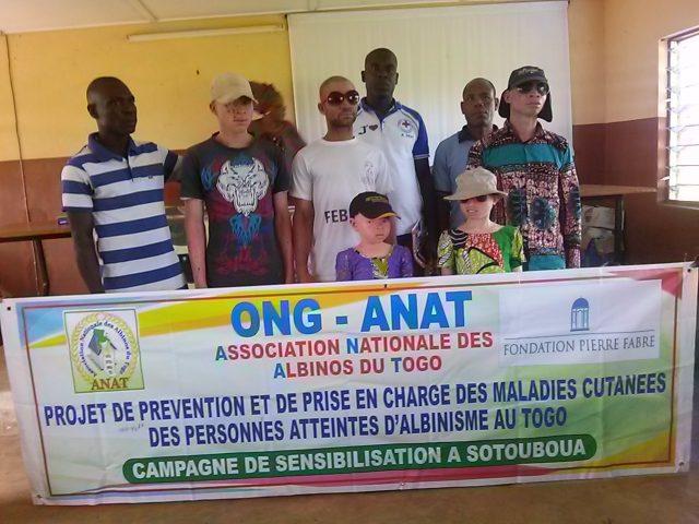 Campagne de sensibilisation à Sotouboua: ANAT contre  l'albinisme au Togo